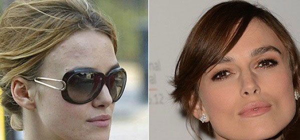 Keira Knightley knows how to get rid of her spots…